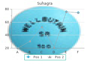 buy suhagra 100mg overnight delivery